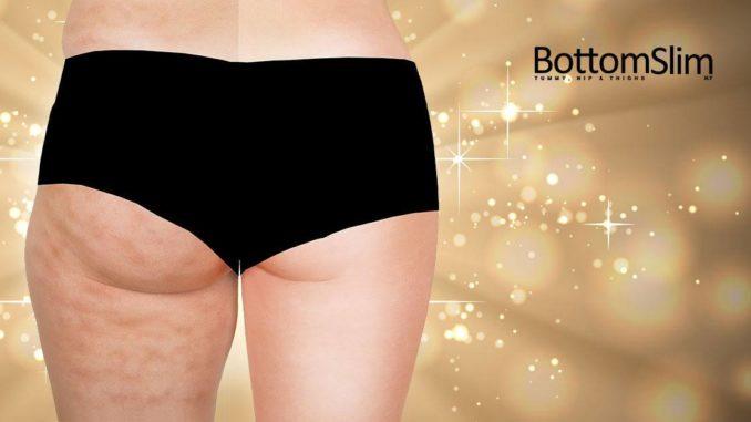 Destroyer of cellulite. (BottomSlim Facebook Page)